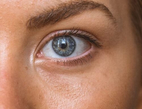 Best Tear Trough Treatments: 3 Ways to Rejuvenate Under the Eyes